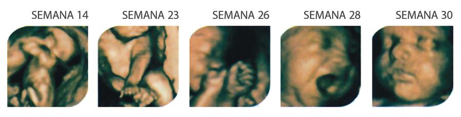 FarmaEstetic Baby – Ecox 4D