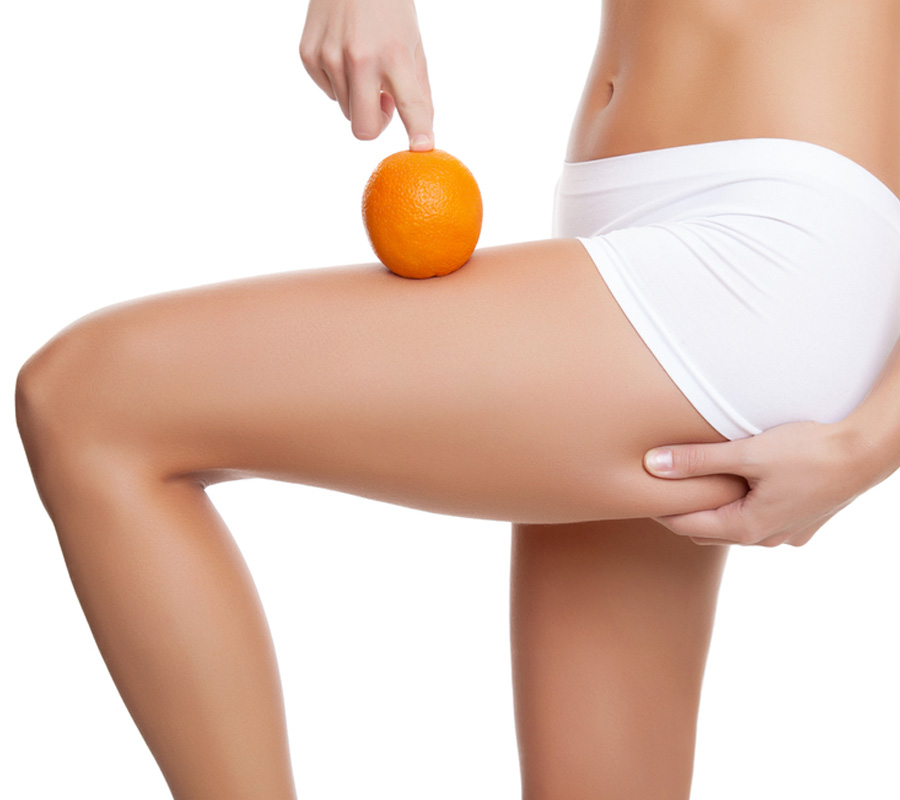 carboxiterapia piel de naranja
